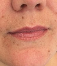 permanent lipstick and lip liner at top Winchester beauty clinic