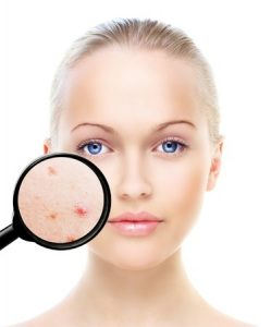 Acne Treatments, Sparx Beauty Salon, Winchester