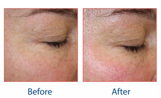 Skin tightening radiofrequency facials, Winchester salon