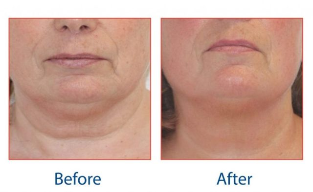 pro-max-facial-tightening-before-and-after