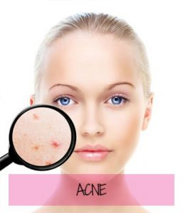 reduce acne at Sparx Beauty Salon, Winchester