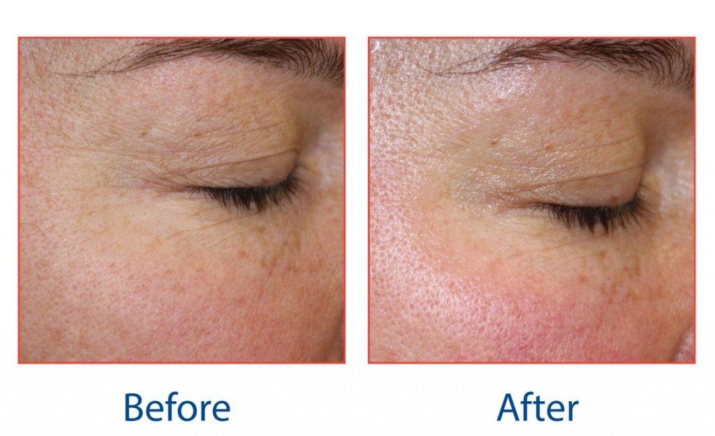 pro-max-anti-ageing-facials