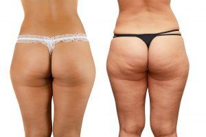 anti-cellulite-treatments, sparx beauty salon, winchester