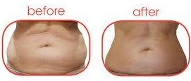 shift fat with laser treatments, sparx beauty salon, winchester