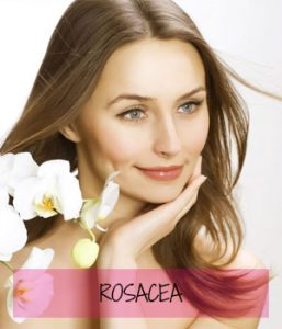 rosacea at Sparx Beauty Salon, Winchester