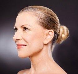 laser treatments, rejuvenation treatments winchester beauty salon