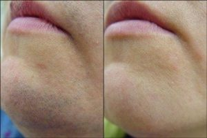 before after IPL laser hair removal on chin at Sparx beauty salon