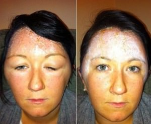 Why is it important to skin test prior to a tinting service?