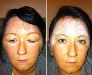 skin-testing-sparx-beauty-salon-winchester