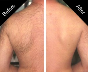 laser-hair-removal-before-and-after-sparx beauty salon winchester hampshire