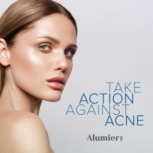 Acne skin care treatment options at Sparx Beauty Salon winchester