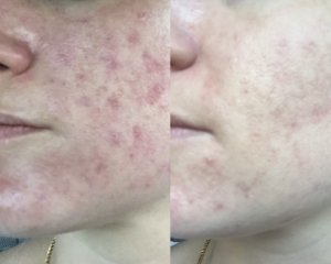 Alumier chemical skin peel results from Sparx Beauty Salon Winchester