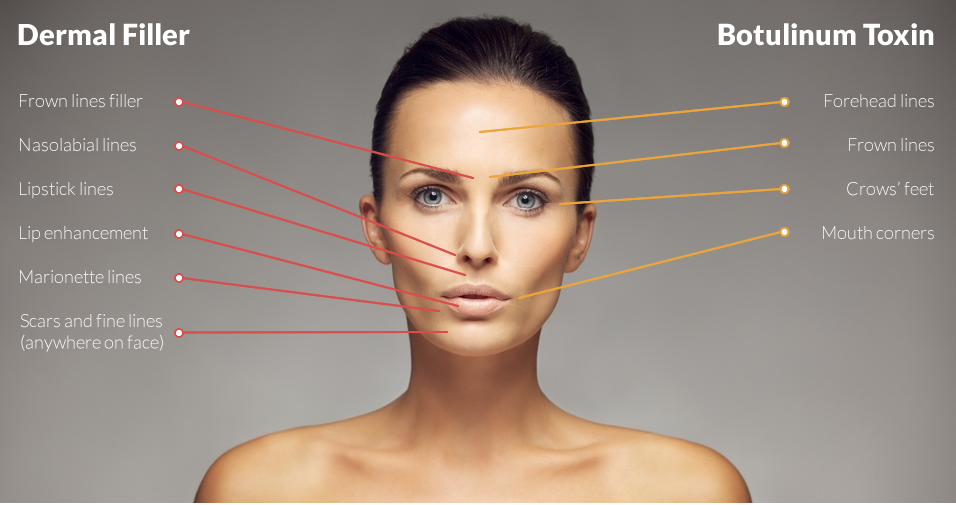 Botox and Dermal Fillers at Sparx Aesthetics Salon Winchester
