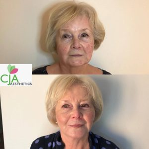 dermal fillers at Sparx Beauty Salon in Winchester