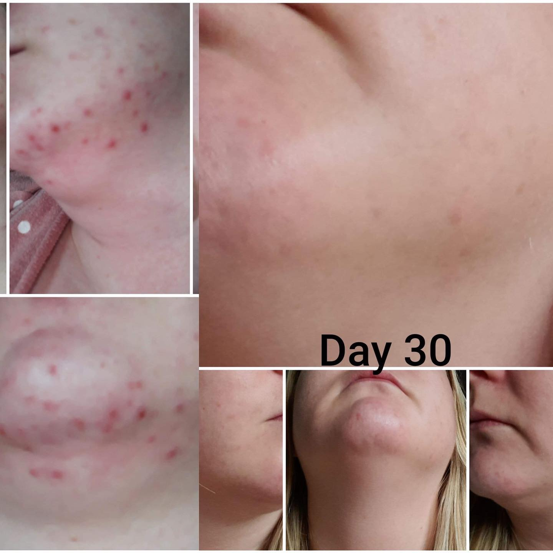 Maskne Treatments Winchester Beauty Salon