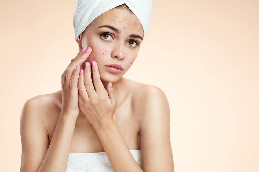 Skin Care for Acne Winchester Salon