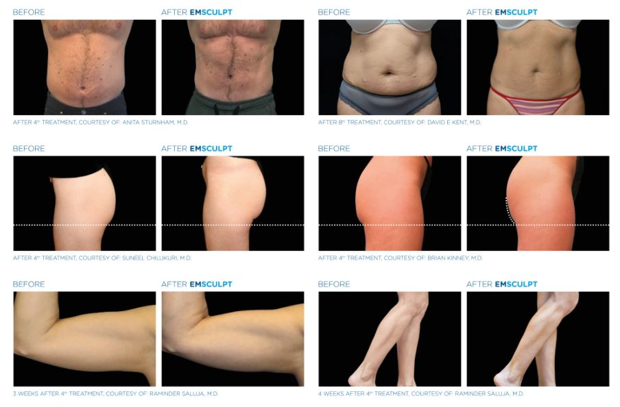 Emsculpt before and after images Winchester aesthetics salon