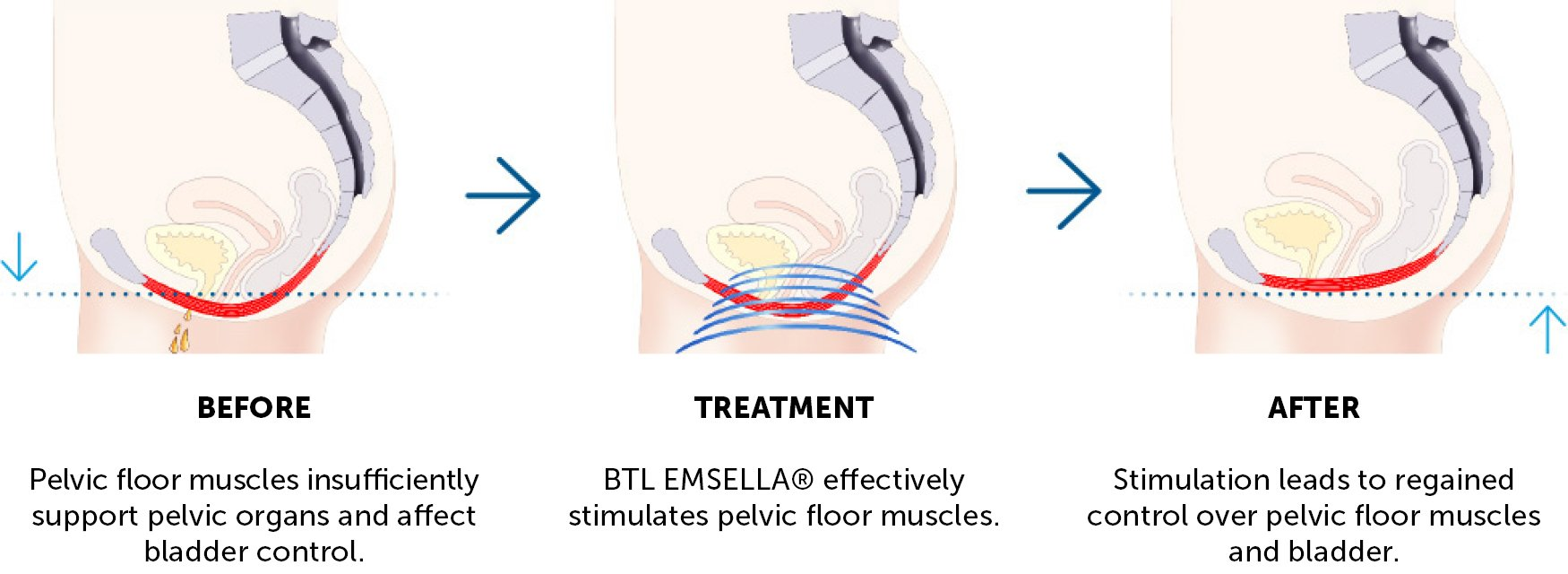 Emsella Incontinence Treatment Results Sparx Aesthetics Hampshire