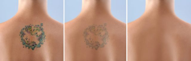 Hampshire Tattoo Removal Services Sparx Laser Clinic Winchester