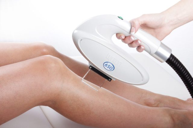 Laser Hair Removal with Lynton Laser at Sparx Winchester Beauty Salon