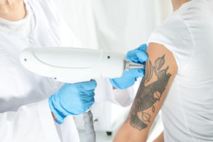 Laser Tattoo Removal Winchester Aesthetics Clinic